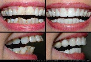 ett bättre leende med kosmetisk tandvård