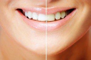 tandblekning kommer göra dina tänder skinande vita igen